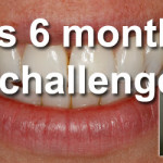 Claires Experience of the 6 Month Smile