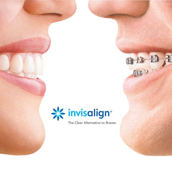 Invisalign with Eg