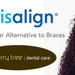Invisalign Clear Braces Launched