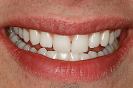 AFTER Teeth Whitening Composite Build up