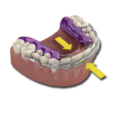 Inman Aligner - How It Works