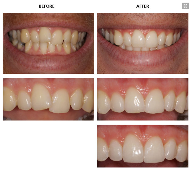 Inman_Aligner_Before_and_After
