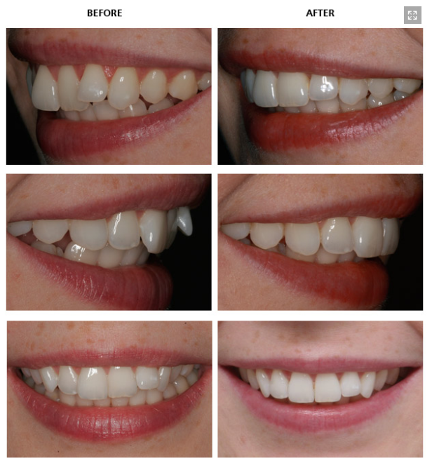 Upper Teeth Crowding