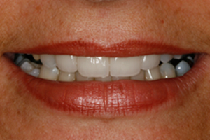 AFTER - Cosmetic Veneers Front