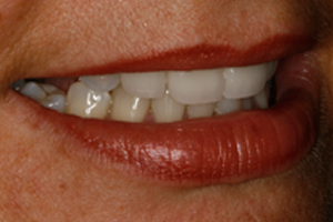 AFTER - Cosmetic Veneers Right