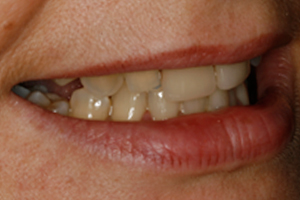 BEFORE - Cosmetic Veneers Right
