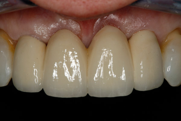 AFTER - 4 Unit Bridge in combination with Teeth Whitening