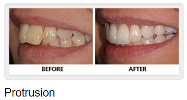 Teeth Protrusion