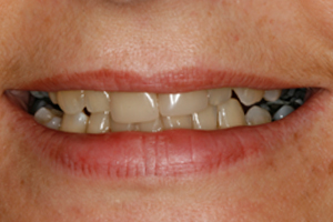 BEFORE - Cosmetic Veneers Front