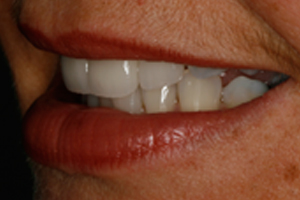 AFTER - Cosmetic Veneers Left