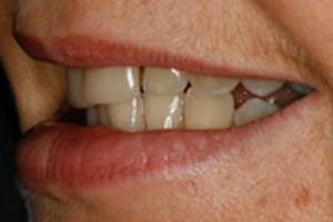 BEFORE - Cosmetic Veneers Left